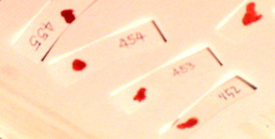 blood samples